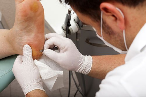 About us photo of chiropodist working on clients foot