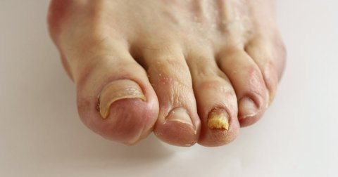 foot with Fungal Nail Infection on 2 toes