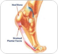 are shoes causing your plantar fasciitis -muscular image of foot displaying plantar fasciitis