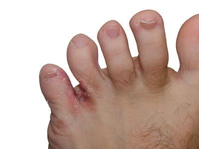 red irritated Fungal Skin Infections between the toes