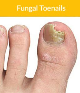 Fungal nail infections on big toe, nail brittle and discoloured
